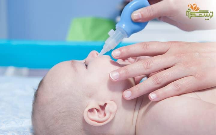 پوار بینی کودک