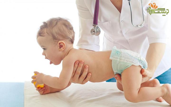 هفته اول نه ماهگی نوزاد و تاخییر در رشد